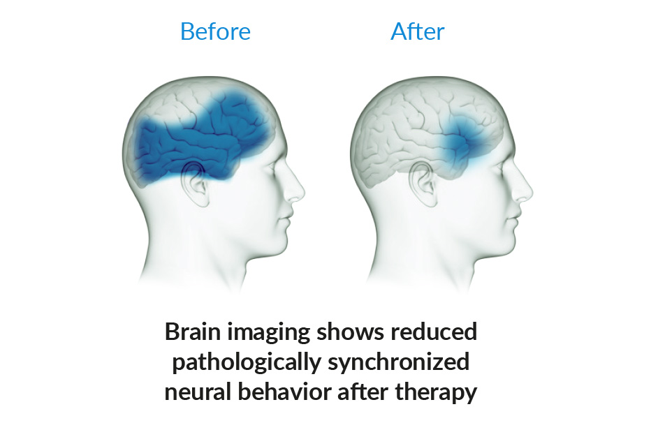 tinnitus brain before and after therapy